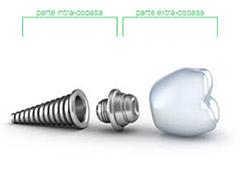 Implant dentar la Cabinetul Stomatologic Andra Smile Buzau